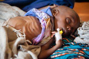 Skrajne niedożywienie niektórych dzieci wymaga pilnej opieki szpitalnej